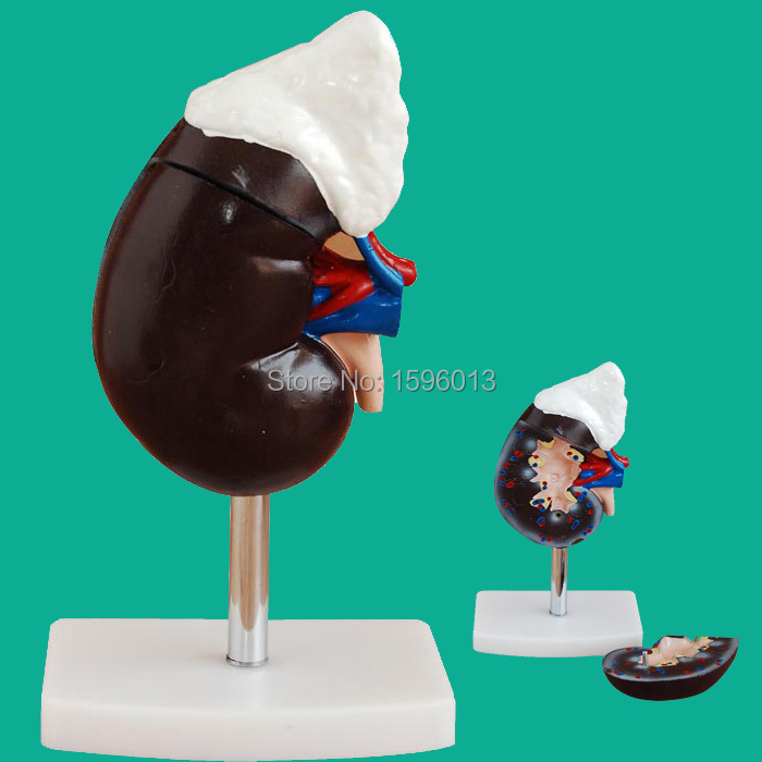 Human Kidney with Adrenal Gland Model  2 parts, Kidney and Adrenal Gland Model<br><br>Aliexpress