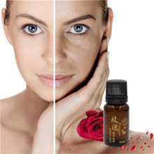 [Explosion Models] Hot (1 Bottle / Set) Aromatherapy Essential Oils 10ml Rose Fragrance Wholesale Rose essential oils