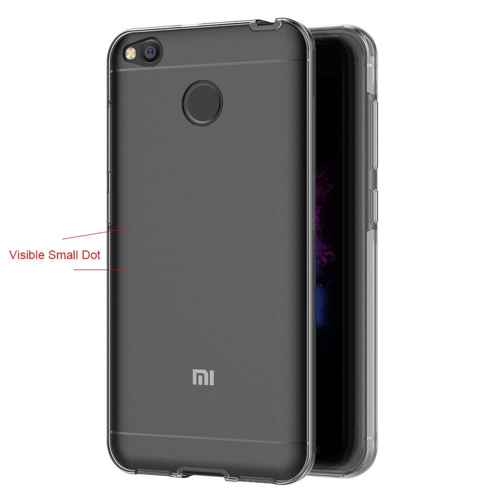 360 Degree Transparent Silicone Case For Xiaomi Mi A1 Redmi 5 Plus 4X 5A Capa Full body Front And Back Coque For Redmi Note 5A2