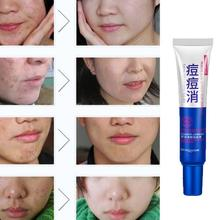 2017 New Designed Effective Face Skin Care Cream Acne Spots Scar Removal Blemish Marks Treatment making skin smooth Anne(China)