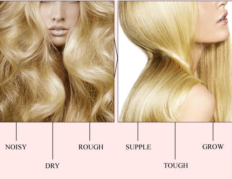 Fast Powerful Hair Growth Essence Hair Loss Products Essential Oil Liquid Treatment Preventing Hair Loss Hair Care Products 20ml 3