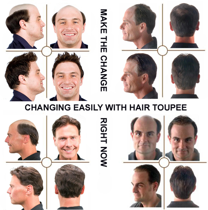 mens toupee hair men\'s toupee hair pieces toupee wig male toupee toupee hair replacement system short hair toupee toupee hair piece black mens toupee hair pieces fake hair toupee for bald spot toupee for bald spot toupee adhesive women\'s toupee human hair