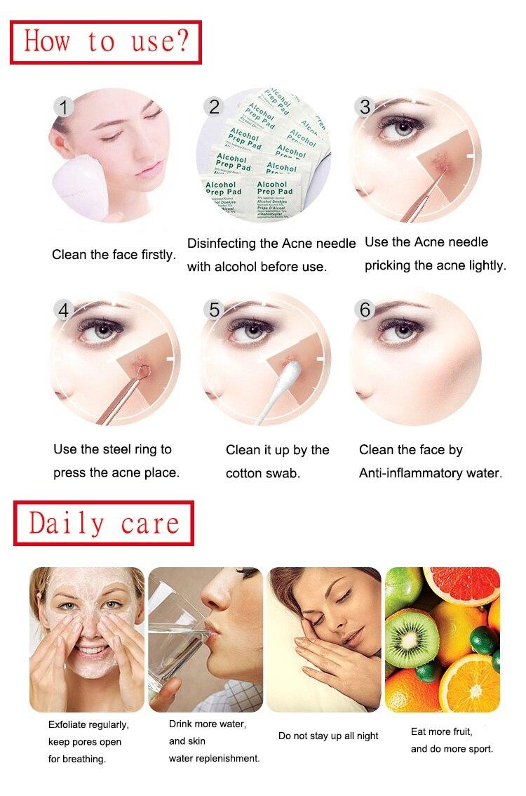 acne-blackhead-reomver-tool