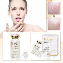 Azelaic Acid Serum For Face Acne Treatment Best Oil Control Skin Care Essence For Large Pores Before And After Effect
