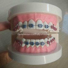 Dental orthodontic plastic teeth study model with elastic bands color bracket and elastic chain