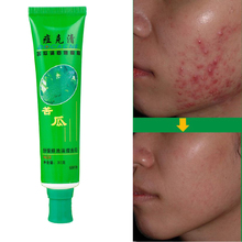 Anti-Acne Cream Ointment Acne Removal Unguent Acne Treatment and Scar Repair 30g Face Skin Care Unisex Adult Skin Care(China)