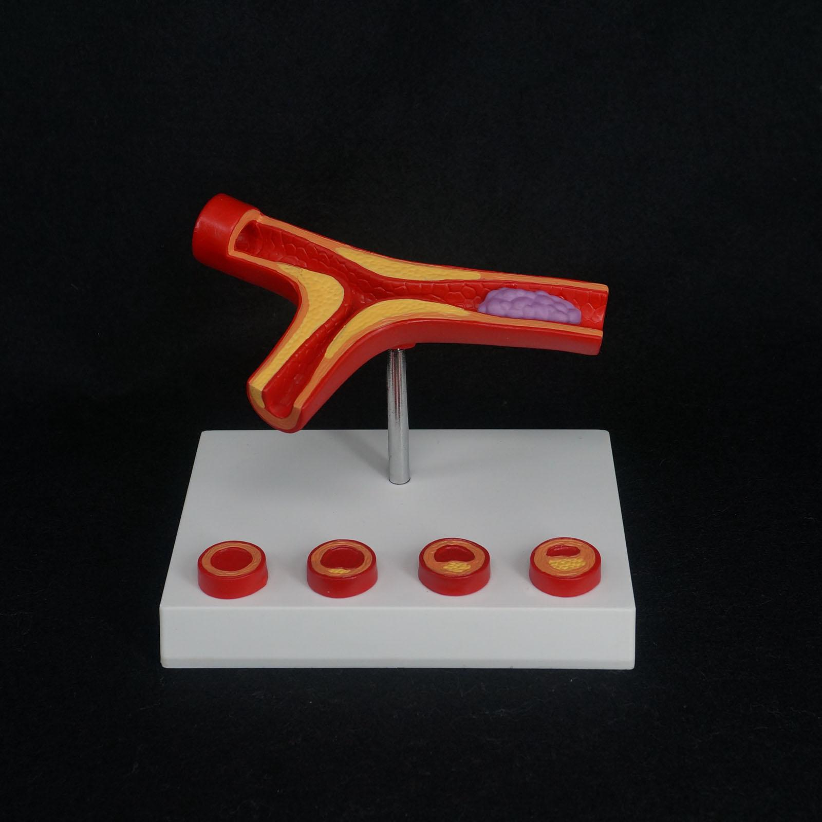 Human Arterial Atherosclerosis Arteriosclerosis Model Thrombus Vascular Medical Model<br>