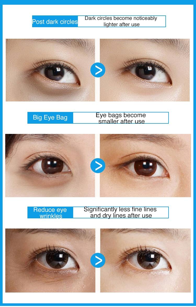 蓝色眼贴膜-英文_04