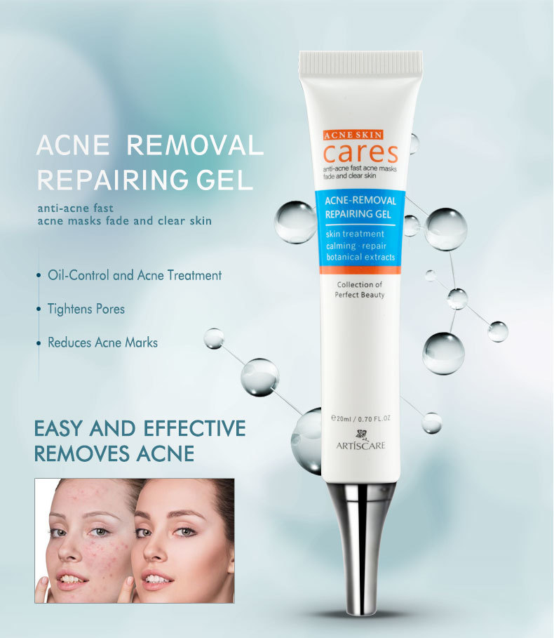 anti-acne_02