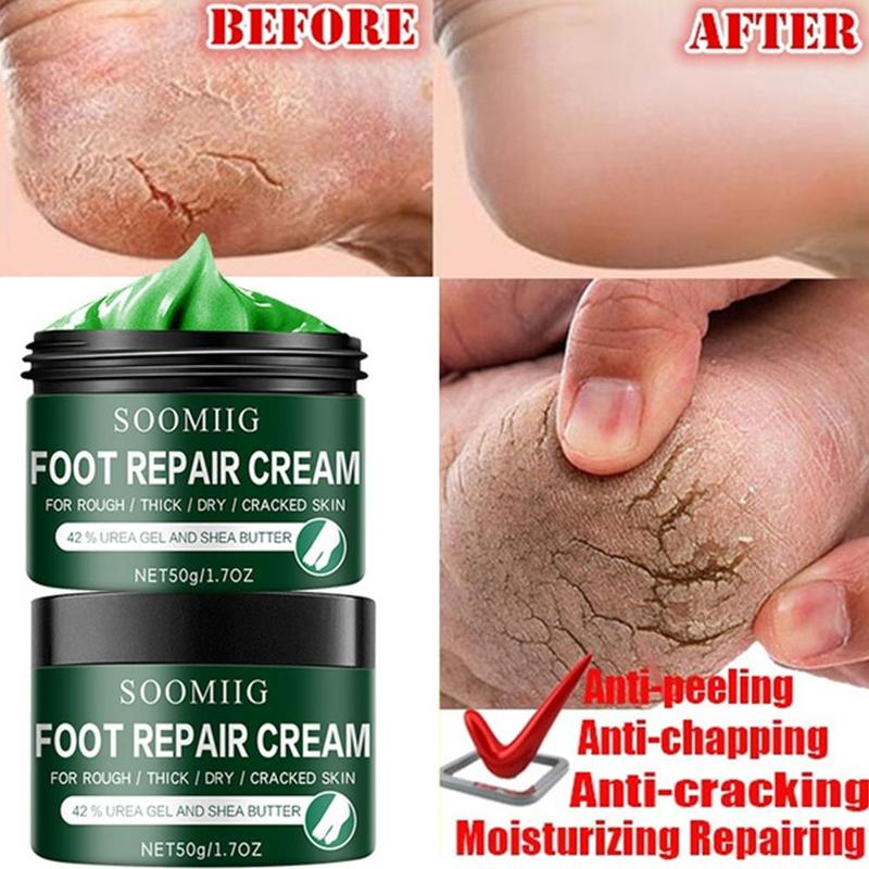 Foot Cream For Dry Cracked Feet