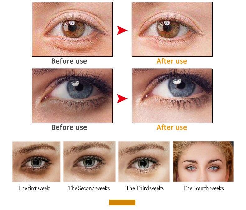 artiscare-eye-crem_10