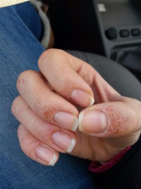 что как вылечить аллергию на руках в домашних условиях залы, все