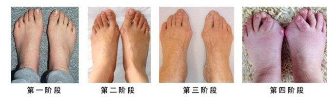 China heel chain Suppliers
