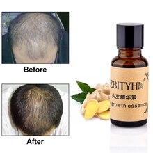 Stock de EE. UU. Crecimiento rápido de cabello esencia Herbal Anti pérdida de cabello líquido denso crecimiento de cabello suero estilo de cabello queratina Esencia de cuidado del cabello