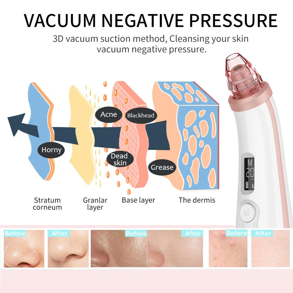 Купить с кэшбэком ANLAN Blackhead Remover Face Clean Pore Vacuum Acne Pimple Removal Vacuum Suction Facial Dermabrasion Tool Machine Skin Care