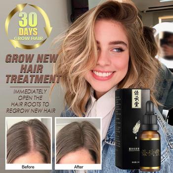 Olejek eteryczny na porost włosów Anti utrata włosów esencja naprawa uszkodzenia leczenie wzrostu włosów gruby korzeń naprawa suche włosy produkty do pielęgnacji tanie i dobre opinie 20161221 Produkt wypadanie włosów Hair Growth Essential Oils 1 bottle 30ml fsjyfy010 Repair Damage Hair Speed Promotes Hair Growth