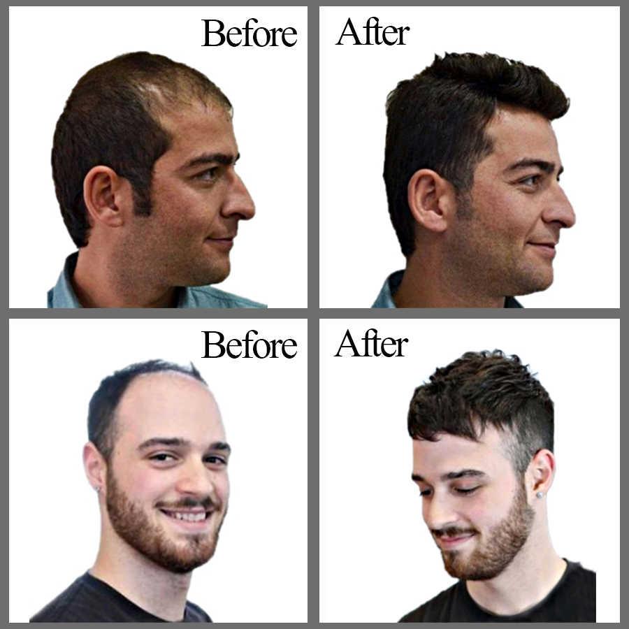 Alileader novo estilo barato homens cabelo prosthesise com clipes cor natural humano fina pele topper perucas de cabelo para o sexo masculino
