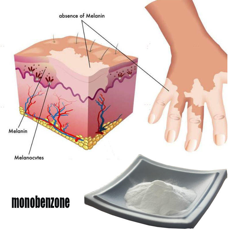 Monobenzone 99% 100g-1000g Whitening White Spot, Decolorizing Monobenzone Raw Material Powder