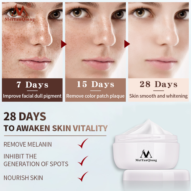 Powerful Whitening Freckle Cream Remove  Acne Spots Melanin Dark Spots Face Lift Firming Face Skin Care Beauty Essentials-2