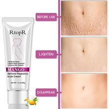 40G Mango Remove Pregnancy Scars Acne Cream Stretch Marks Treatment Maternity Repair Anti-Aging Anti-Winkles Firming Body Creams cheap YIGANERJING Mango Remove Pregnancy Scars Cream Herbal CHINA GZZZ