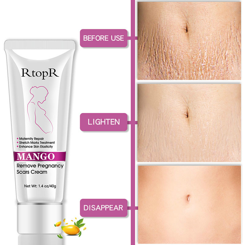 Mango Remove Pregnancy Scars Acne Cream Stretch Marks Treatment Maternity Repair Anti-Aging Anti-Winkles Firming Body Creams