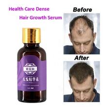 20ml Fast Hair Growth Faster Grow Hair Regrowth For Men Women Pure Natural Hair Loss Products Pilatory Treatment Anti-Hair Loss