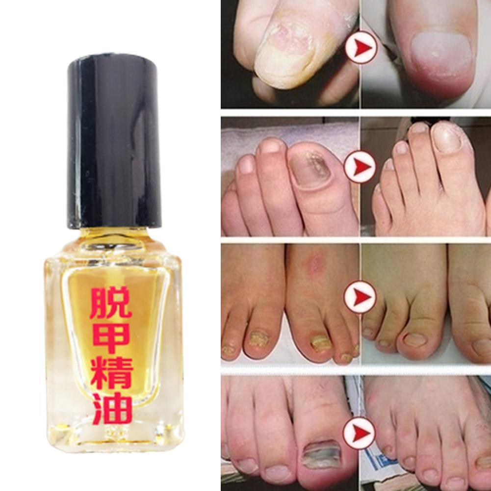 3 Days Effect Fungus Removal Liquid Fungal Nail Treatment Nail Repair Bright Anti Infection Onychomycosis Foot Caring R0L4
