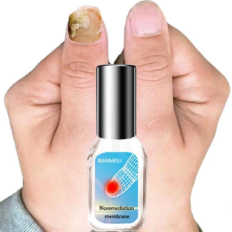 10g solución de reparación de uñas de forma efectiva tratamiento de uñas micóticas eliminación de hongos de las uñas de los pies Gel cuidado de los pies