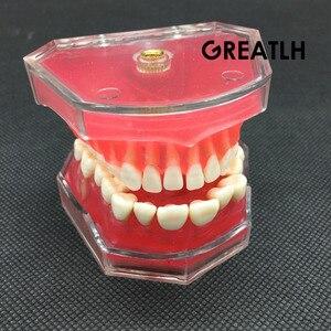 Image 4 - Dental  Standard Model with Removable Teeth #4004 01 Dental Study Teach Teeth Model