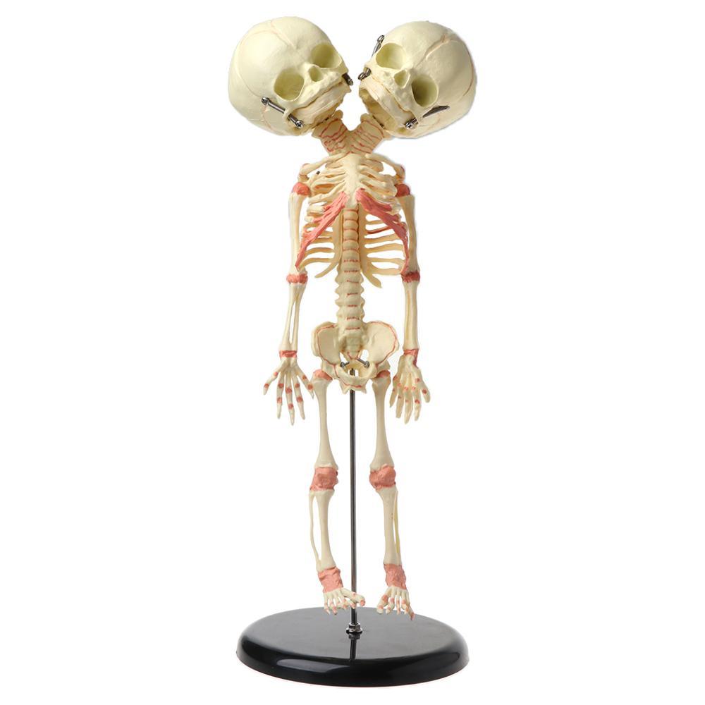 37cm Human Double Head Baby Skull Skeleton Anatomy Brain Display Study Teaching Anatomical Model