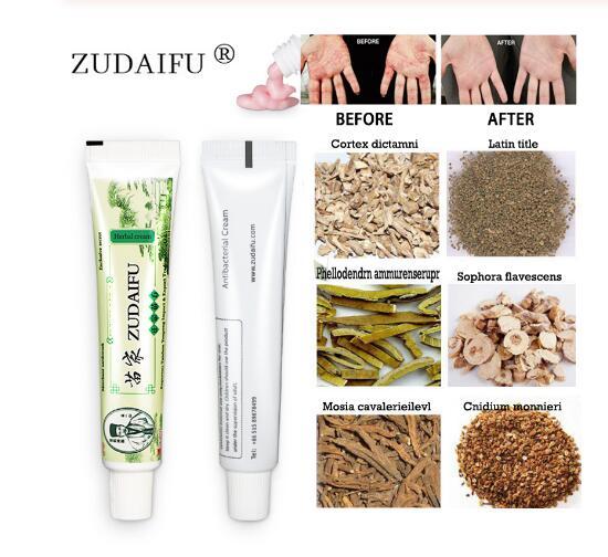 25 pz zudaifu yiganerjing crema per la psoriasi della pelle dermatite ecceematoide Eczema unguento trattamento crema per la psoriasi crema per la cura della pelle 2