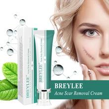 Breylee cicatriz gel creme hematomas estiramento tratamento 30g cuidados com a pele antigas e novas cicatrizes acne creme marcas tratamento