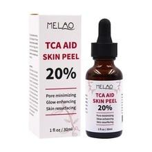 Tca Aid Skin Peel Face Serum Trichloroaectic Acid