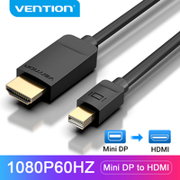 Vention Mini DisplayPort to HDMI Cable 1080P Mini Display Port Male to HDMI Male Cable for HDTV Apple MacBook Mini DP to HDMI
