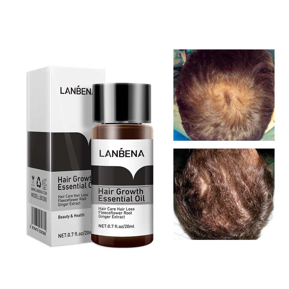 LANBENA, productos de loción de crecimiento de pelo rápido y potente, aceite esencial para tratamiento, prevención de pérdida de cabello, cuidado del cabello, 20ml