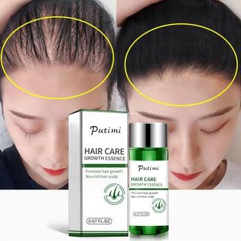 2pcs Fast Hair Growth Essence Oils Anti Hair Loss Treatment Dense Extract Hair Growth Serum Growing Hair Care Serum Restoration