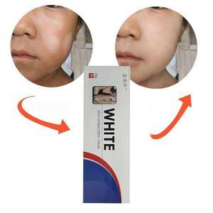 20g Chinese Medical White Spot Disease Cream Pigment Melanin Promoting Liniment Skin Vitiligo Leukoplakia Disease Treatment