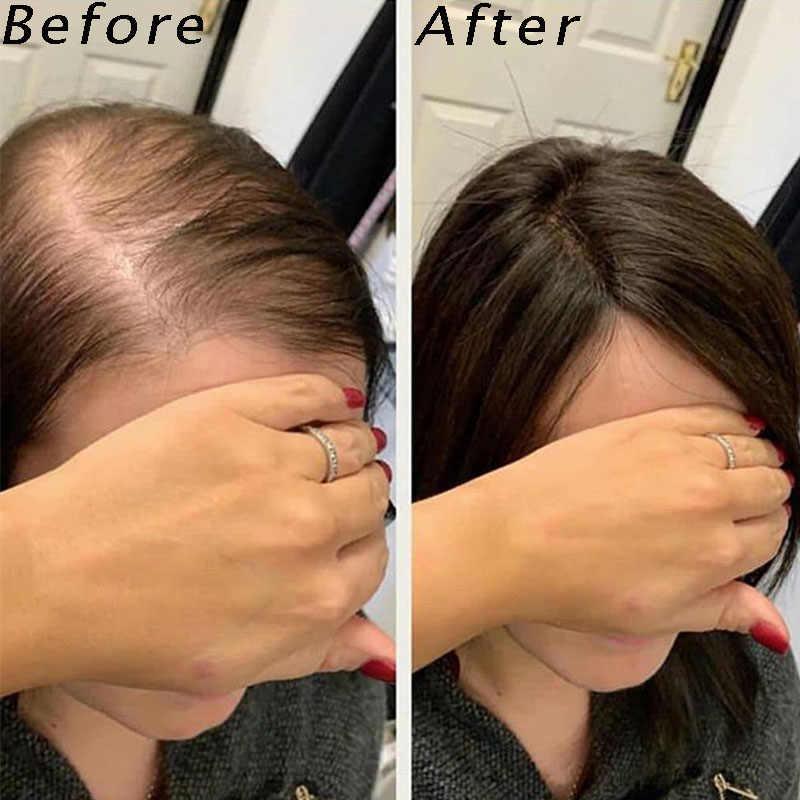 2,5x4 pulgadas pelo de tupé para las mujeres Topper del pelo para las mujeres pinza de pelo humano Ins Color Natural 130% volumen extensión Rosa reina