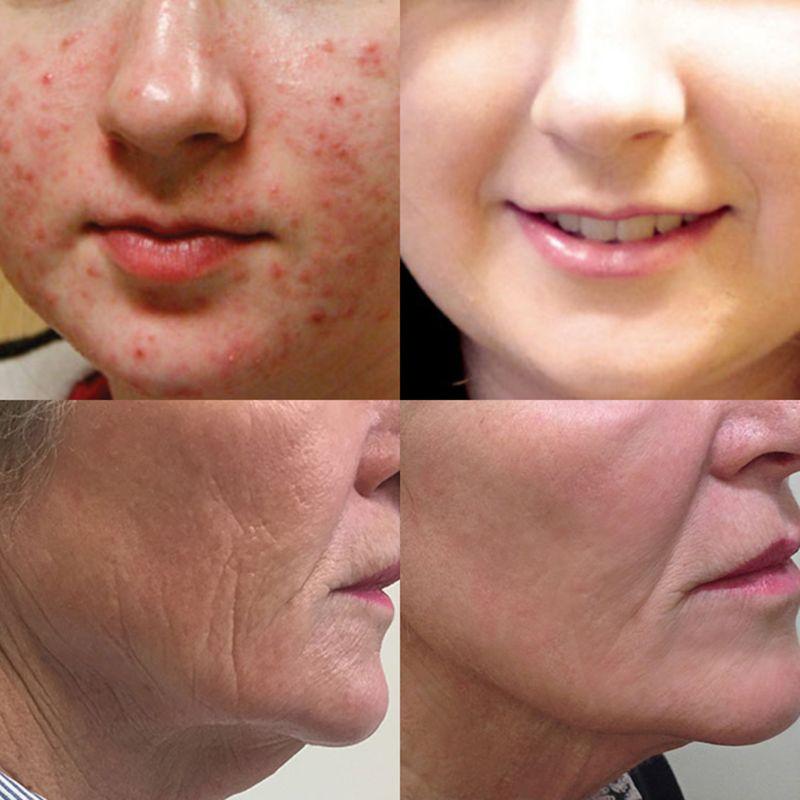 Купить с кэшбэком Vitamin C Serum Anti Wrinkle Aging Freckle Removing Skin Moisturizer Essence