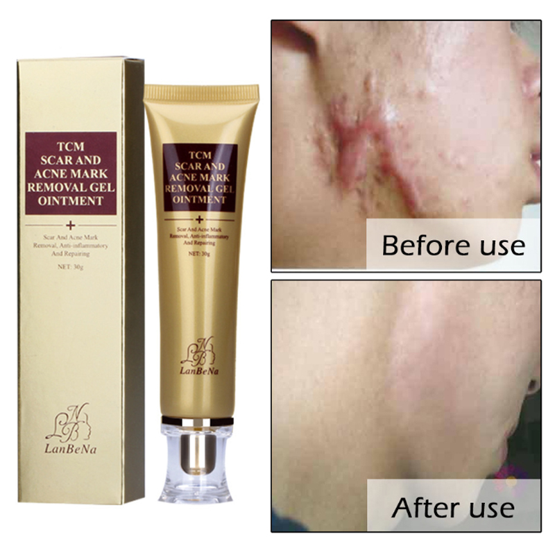 Removal Of Scars And Scars Instrument Acne Mask Removing Gel Ointment Lambena Skin Repair Labena Facial Treatment Scream Lanbena