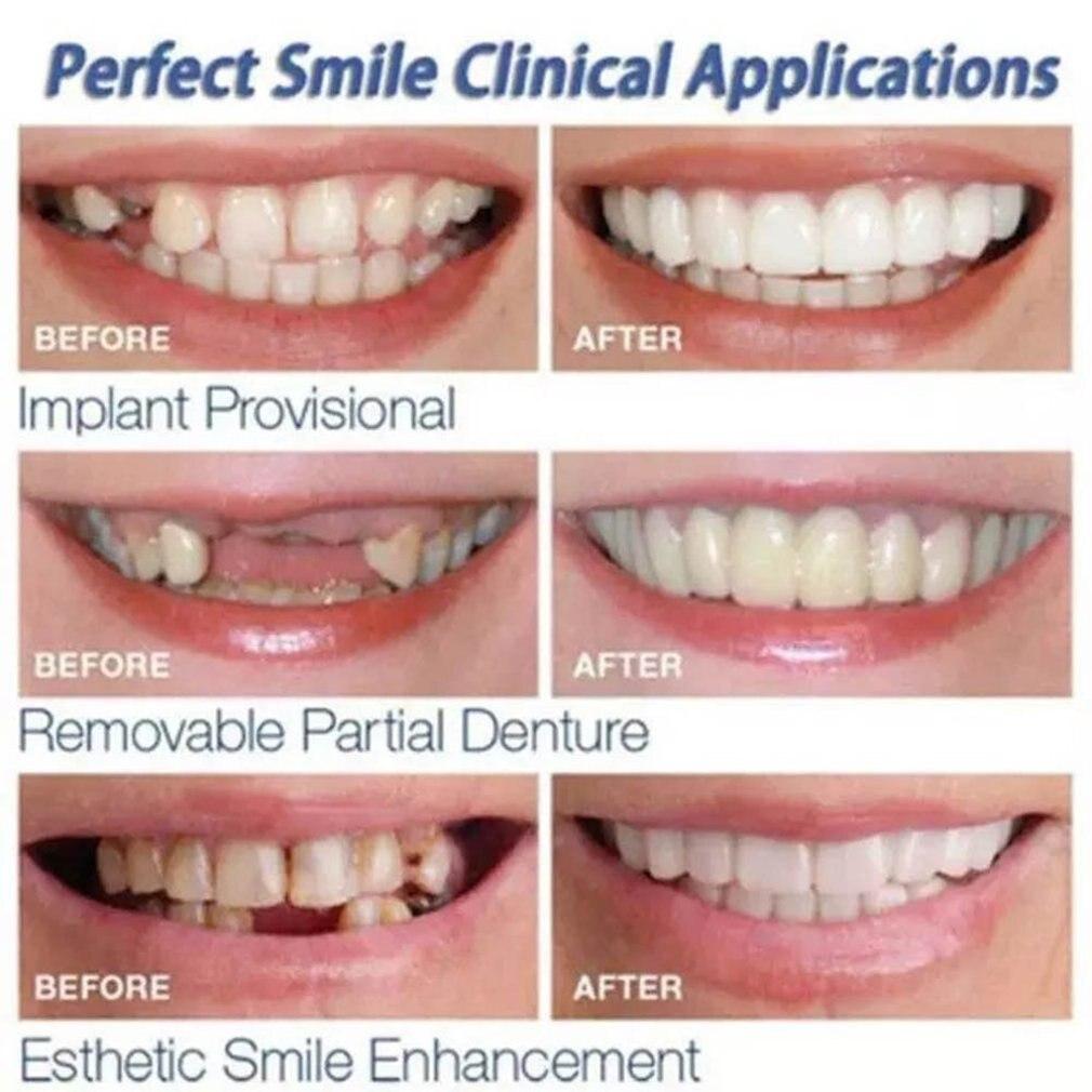1 Set Silicone Teeth Whitening Teeth Cover Teeth Braces Simulation Upper Teeth  Lower Teeth Set Perfect Smile