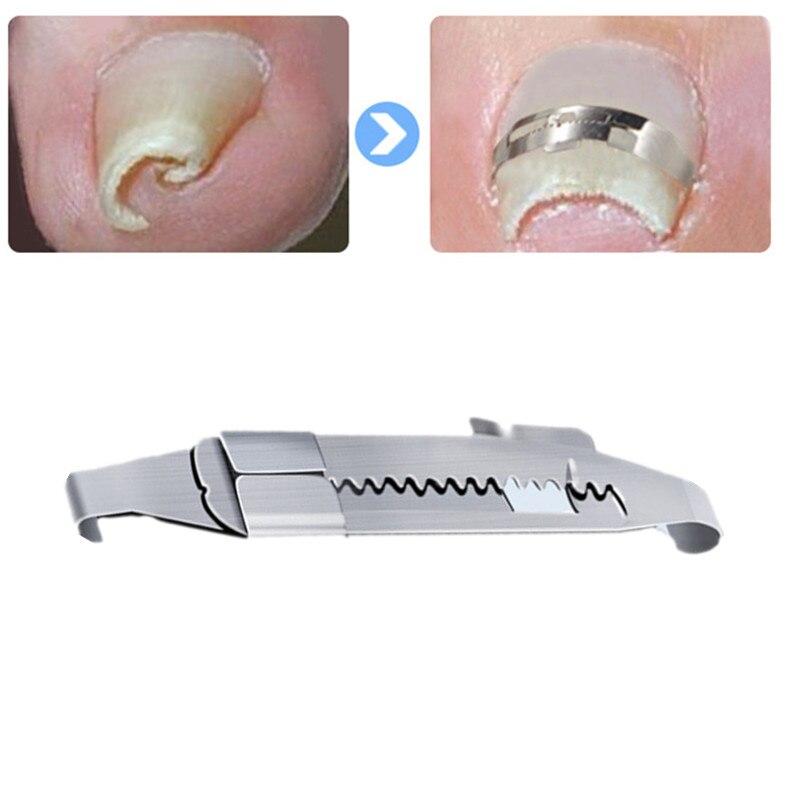 Вросшие ногти корректирующие инструменты педикюр восстановить добавьте носок Уход за ногтями Профессиональный вросших ногтей коррекции и...