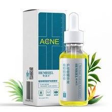 HEMEIEL Acne Scar Removal Face Serum Pimple Acne Treatment Plant Essence Oil Con