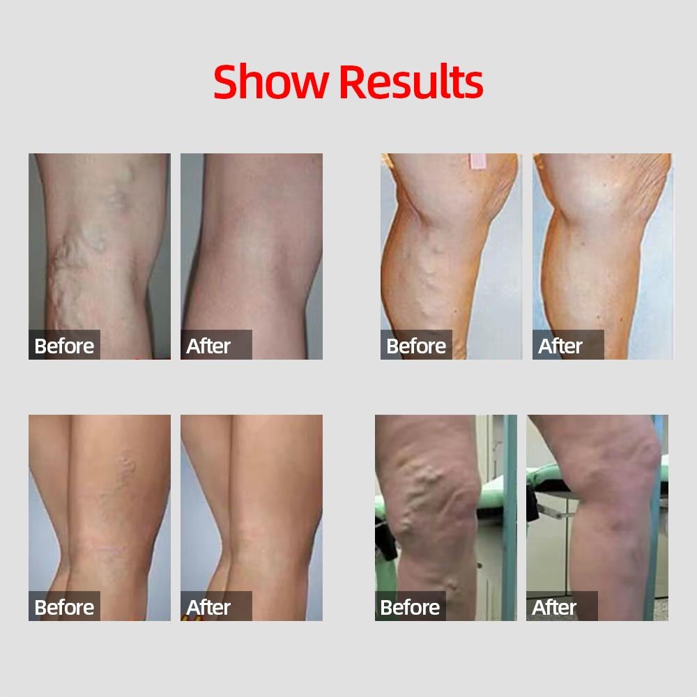 Herbal Medicine For Treating Varicose Vasculitis Phlebitis Spider Legs Veins Pain Massage Cream Treat Varicose Vein Ointment 3