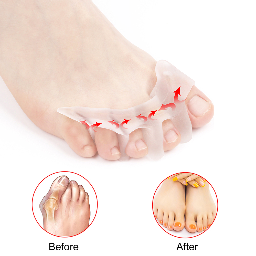2Pcs/1Pair Toe Separator Hallux Valgus Bunion Corrector Orthotics Thumb Adjuster Correction Pedicure Straightener Foot Care Tool