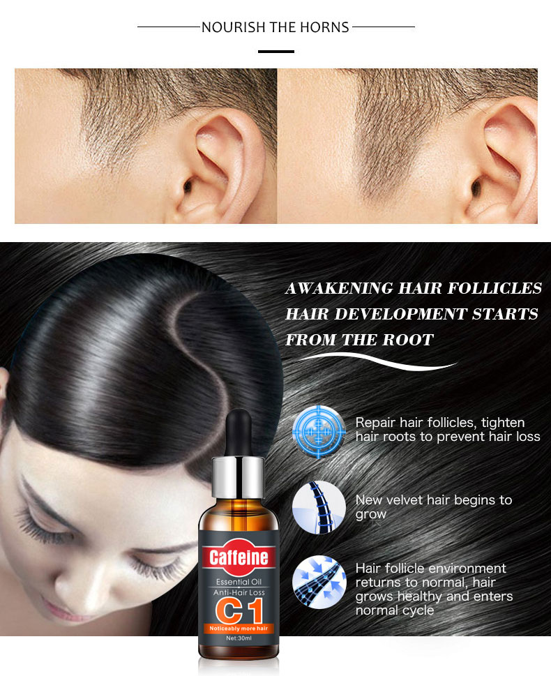 Fast Powerful Hair Growth Essence Hair Loss Products Essential Oil Liquid Treatment Preventing Hair Loss Hair Care Products 30ml