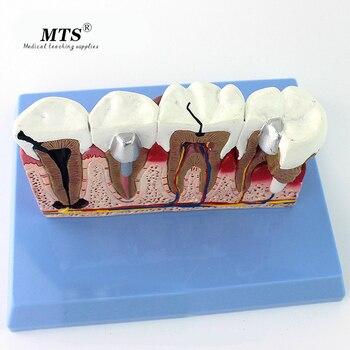 Medical Dental Model Oral Dental Disease Planting Repair Model Oral pathology Medical teaching Model  traumatic pistol dental diseases model dental lesions series model