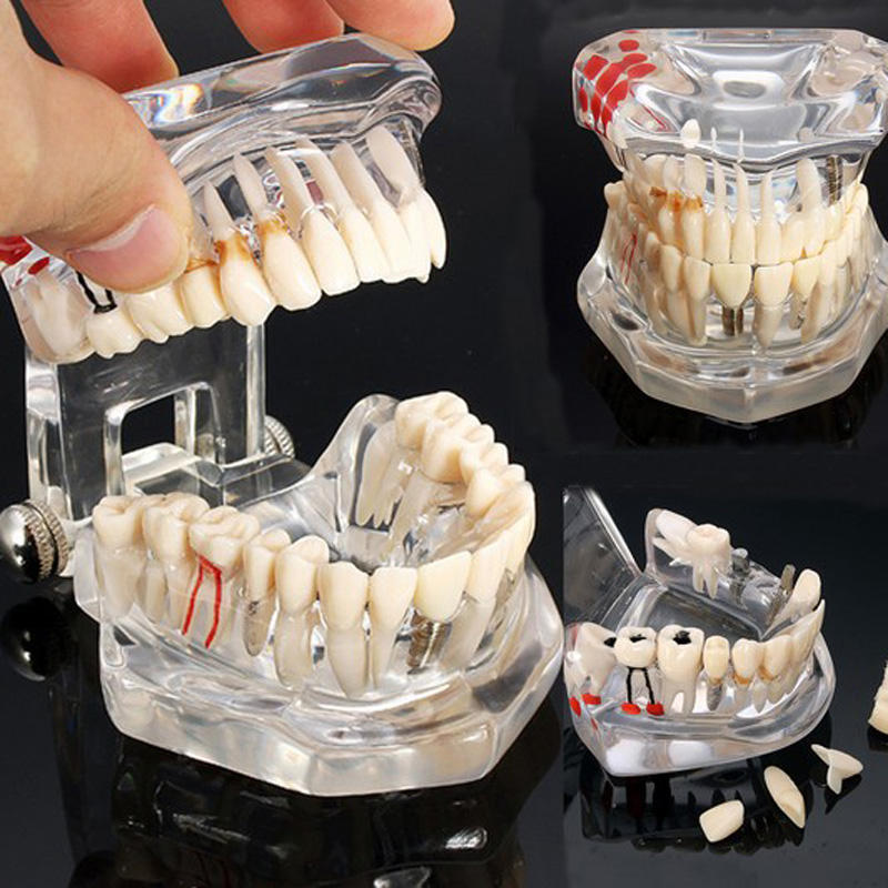 Teeth Model Dental Implant Teaching Study With Restoration Bridge Tooth Dentist Medical Science Dental Disease Teaching Study