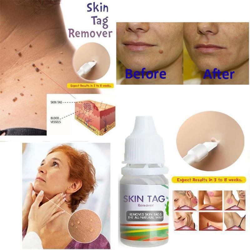 1X Skin Tags Remover Skin Tags Mole Foot Corn Warts Chinese Medicine Treatment Pressure Foot Patch Removal Skin Care Tool 10ML