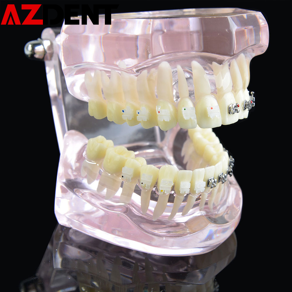 Dental Orthodontic Model Teeth Implant Restoration Bridge Teaching Study For Dentist Medical Science